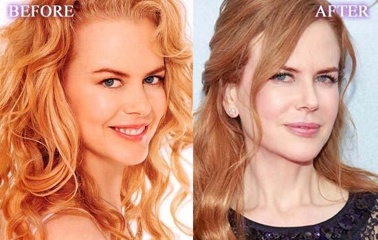 Nicole-Kidman-Plastic-Surgery
