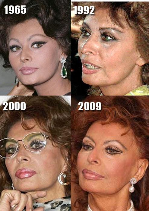 sophia-loren-plastic-surgery