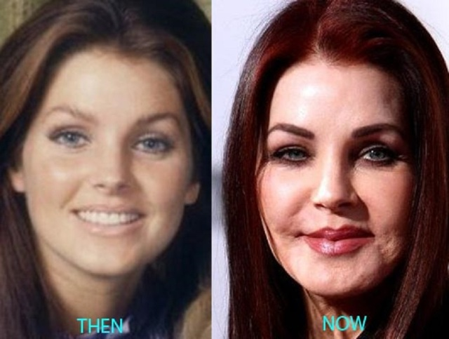 The-Story-of-Priscilla-Presley-Plastic-Surgery-Disaster-